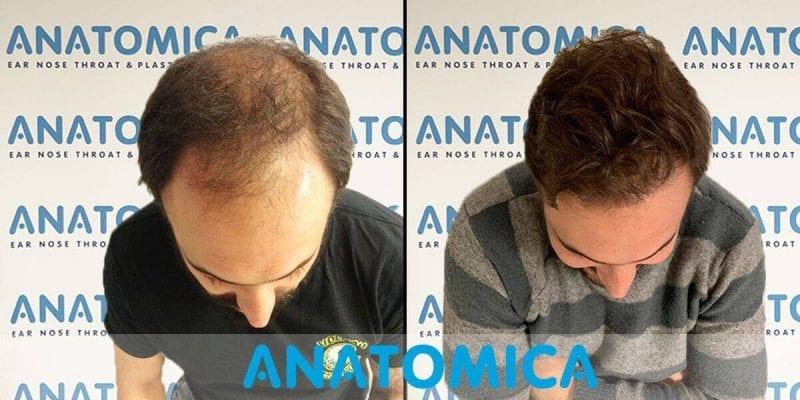 greffe-de-cheveux-avant-apres-2
