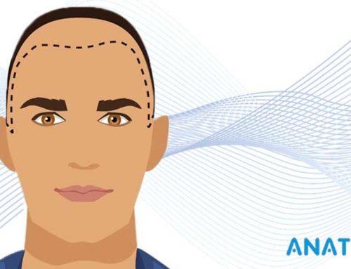 Importance d'identifier la Racine des Cheveux