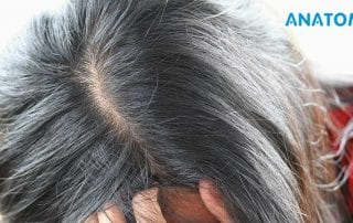 les-pellicules-causent-elles-la-perte-de-cheveux