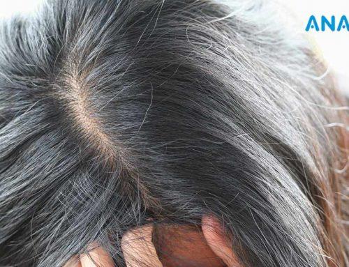 Les Pellicules Causent-elles la Perte de Cheveux?